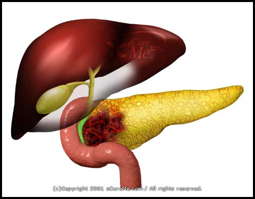liver failure more condition symptoms